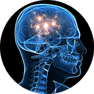 Brain injury claim lawyers Toronto