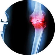 Fracture injury claim lawyers Toronto